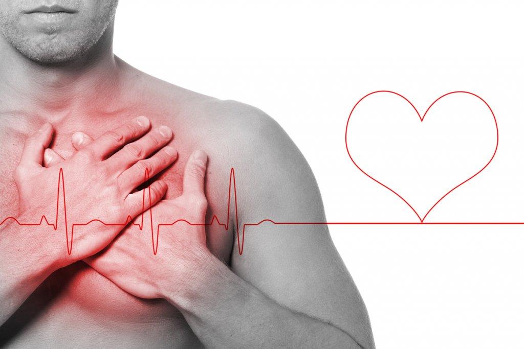 segnali infarto
